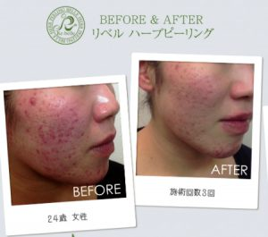 Rebell-acne